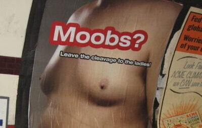 Moobs- Males Breasts – cause of shame, depression and bully